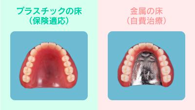 金属床義歯_表