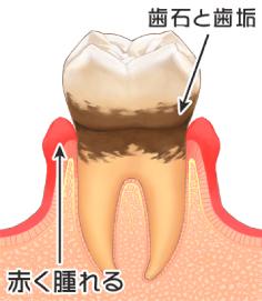 歯肉炎(軽度)