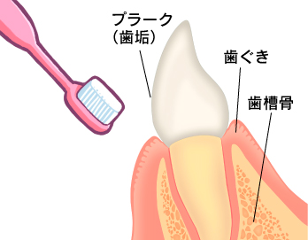 歯磨きの練習