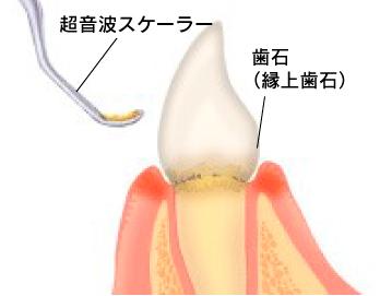 大まかな歯石除去