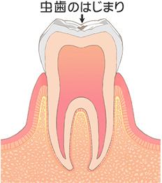 C0/削る治療の必要ない初期の虫歯