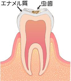 C1/歯の表面の虫歯(エナメル質)