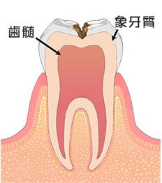 C2/神経に近い虫歯(エナメル質が侵される)