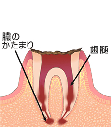 C4/歯が崩れた末期の虫歯(歯冠部まで侵される)